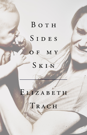 Both Sides of My Skin book cover, a mother and baby, with the baby pulling the mom's hair.